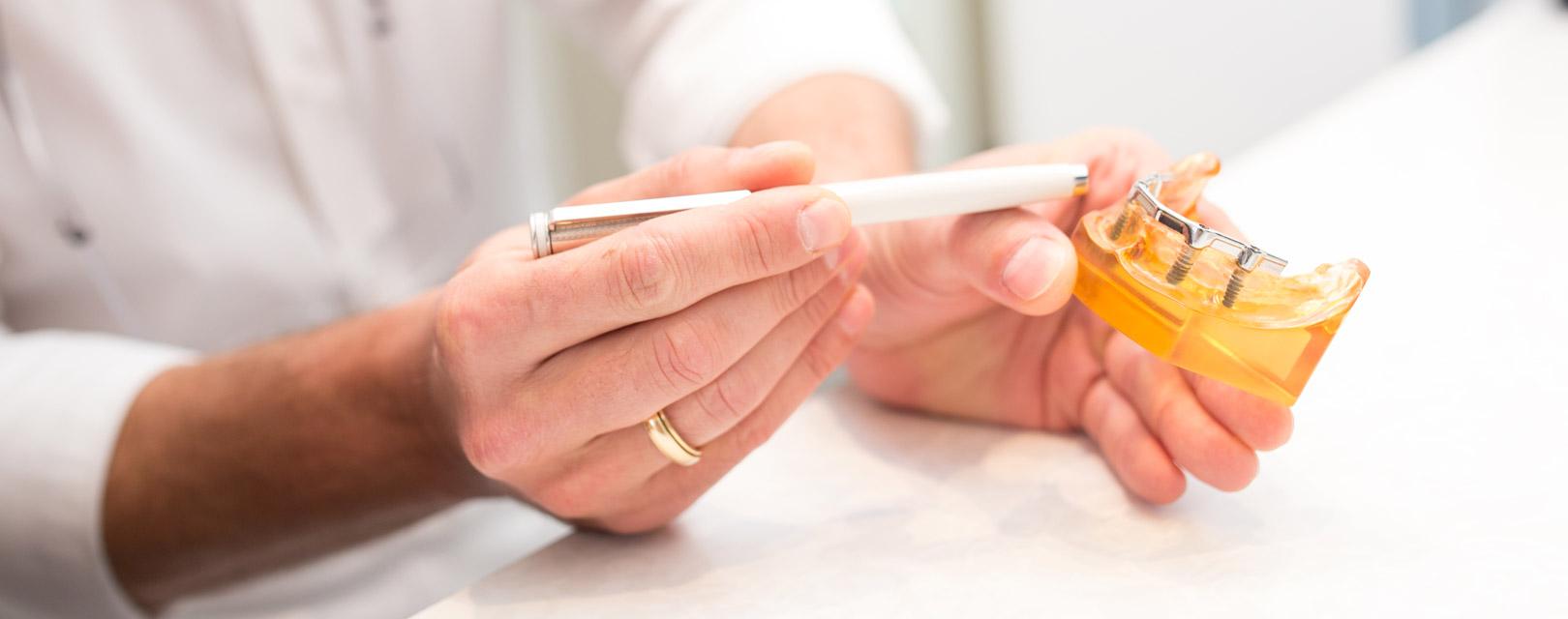 zahnimplantate-zeigen